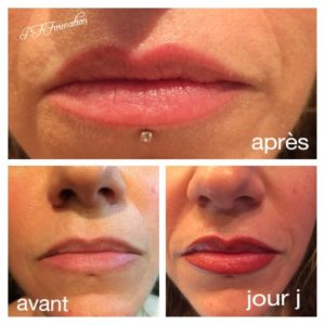 Maquillage permanent lèvres